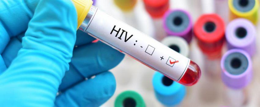 حقایقی در مورد ویروس اچ آی وی